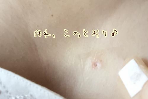 20150521_ホクロ2