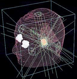 三次元治療計画を用いた聴神経腫瘍に対する多門照射の例