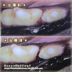右下奥歯3