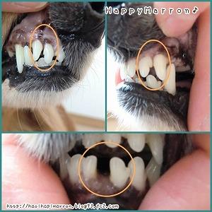 歯科治療A