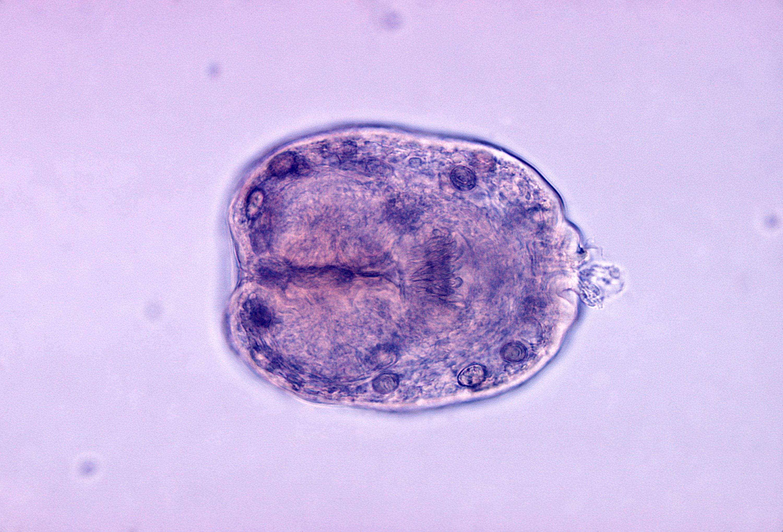 Echinococcus_granulosus_scolex.jpg