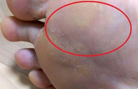 足裏の怪我