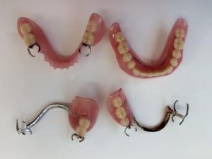 保険義歯縮小