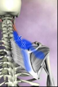 肩甲拳筋とその誘発痛