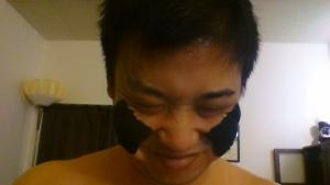 両頬テーピング完了後の皺の確認