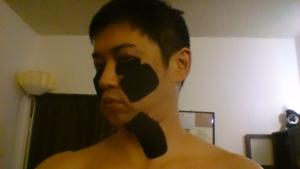 1枚目貼った後キネシオテープの皺を確認。(顎首)