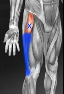 大腿筋膜張筋トリガーポイント
