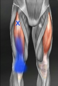 大腿直筋トリガーポイント