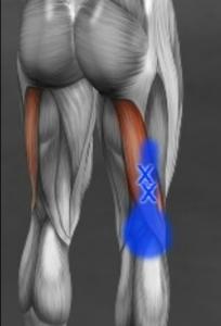 大腿二頭筋トリガーポイント