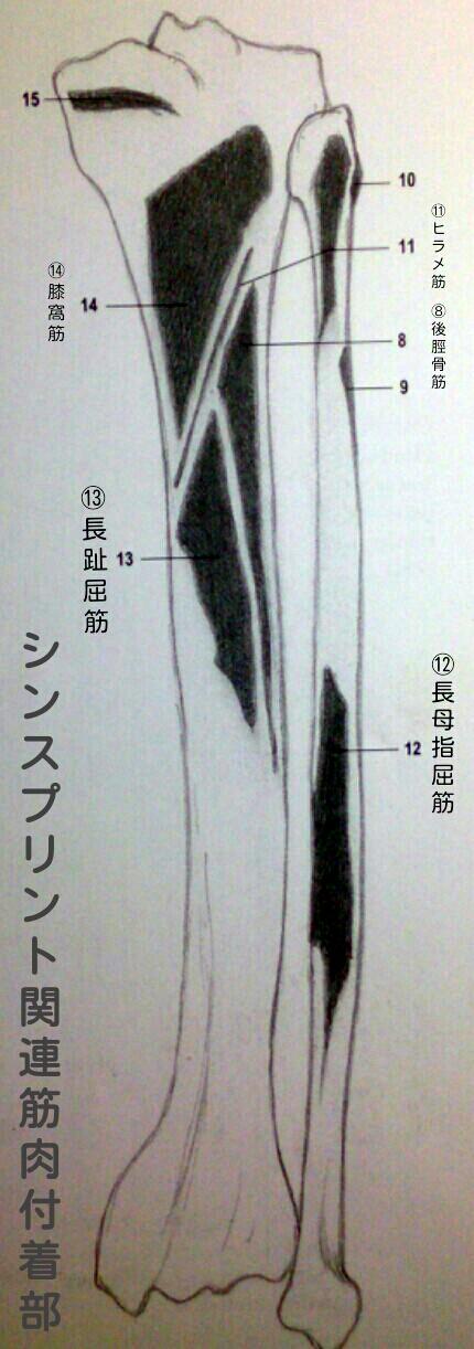 シンスプリント関連筋筋付着部