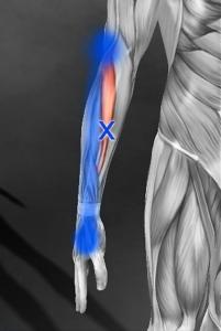 長橈側手根伸筋のトリガーポイント