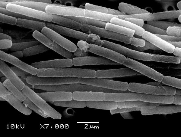 アメリカ国防総省が英国の施設に炭疽菌を誤って発送