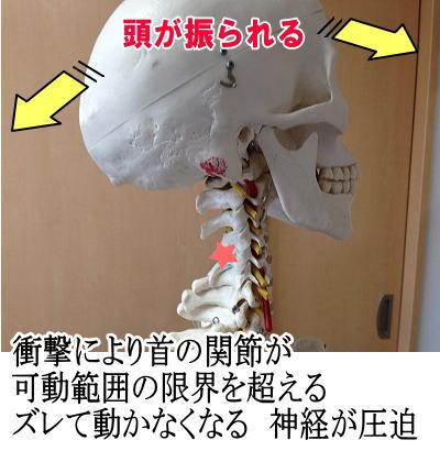 syougeki.jpg